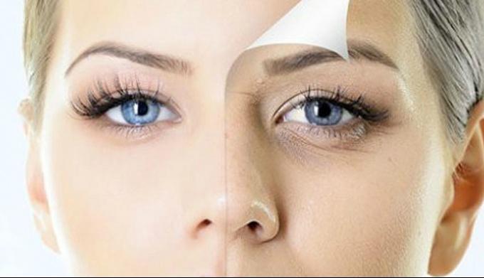 Как бороться с морщинами вокруг глаз